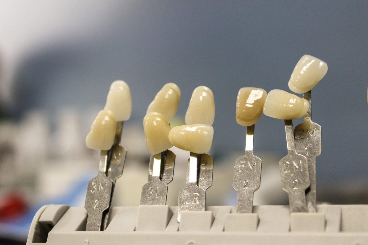Prześliczne nienaganne zęby oraz powalający przepiękny uśmiech to powód do dumy.
